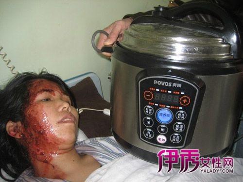 奔腾牌电压力锅存安全隐患爆炸烫伤主妇