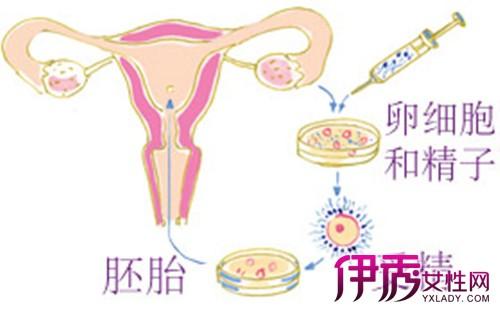 体外受精是哺乳动物的精卵子在体外人工控制的环境中