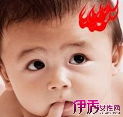 宝宝六个月上火眼睛总流泪和眼屎怎么办?