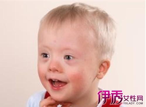 婴儿舌头发白怎么回事