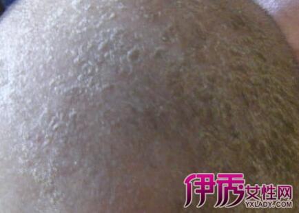 婴儿头皮湿疹的治疗方法