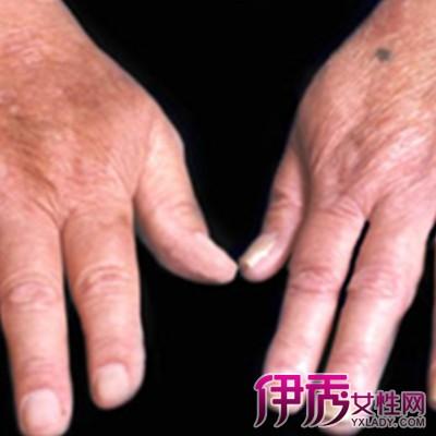 真菌性皮肤病怎么治疗