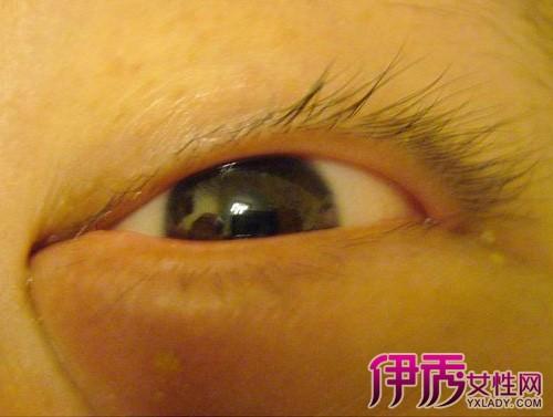 眼睛上长了个小疙瘩图片1