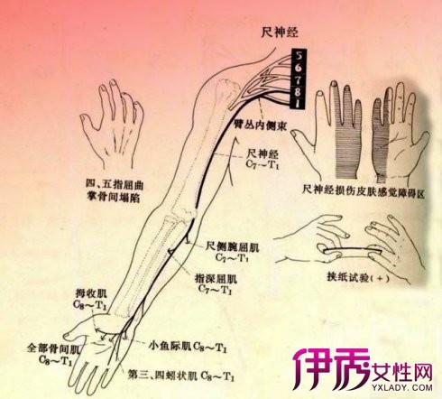 【图】正中神经损伤的临床表现有哪些?
