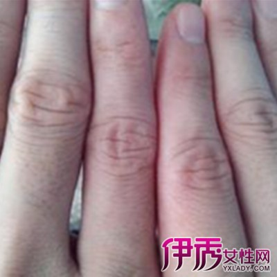【图】你知道小手指关节疼痛是什么原因