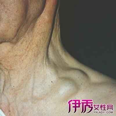 淋巴结肿大的症状是什么