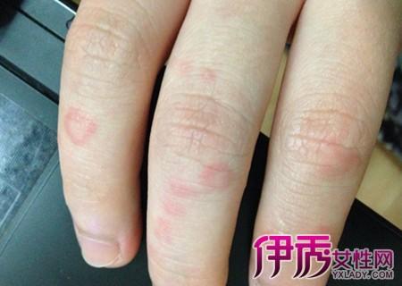 【图】冻疮手指粗怎么变细呢? 有哪些自我的疗法