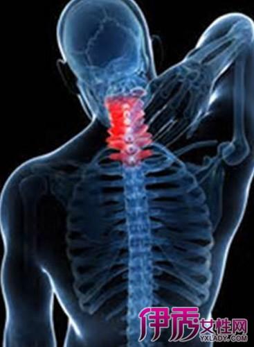 颈椎病最严重的症状_【图】颈椎病的症状有哪些 如何治疗颈椎病比较有效(2)_健康养生 ...