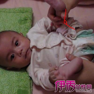 婴儿肌张力高的危害