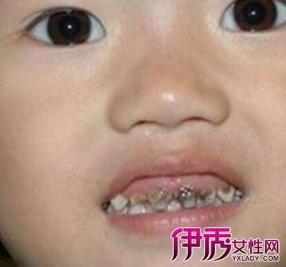 宝宝有蛀牙怎么办